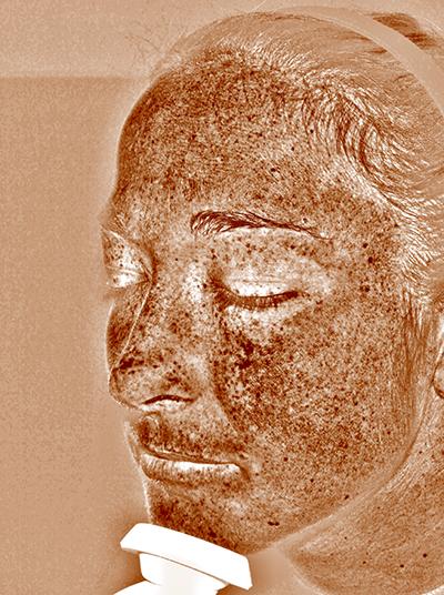3D-Hautanalyse der Überpigmentierung