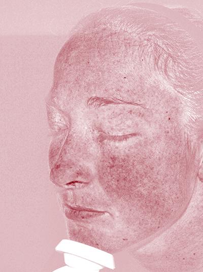 Hautanalyse der Kapillarschäden