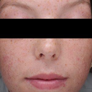 Vorher-Bild Skin Clear Biome